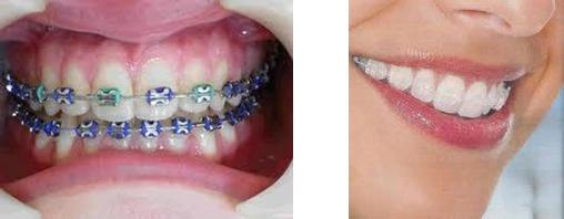 apparecchio-ortodontico