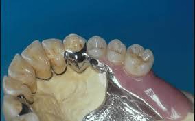 protesi dentiarie removibili