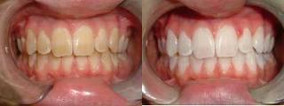sbiancamento-odontoiatria-estetica